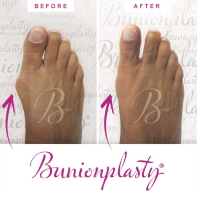 Bunionplasty Before & After Patient 1