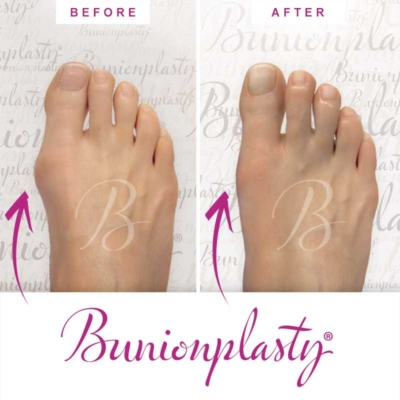 Bunionplasty Before & After Patient 2