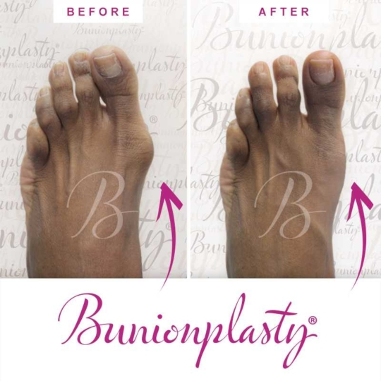 Bunionplasty Before & After Patient 3