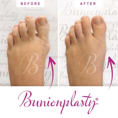 Bunionplasty Before & After Patient 4