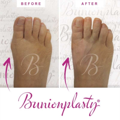 Bunionplasty Before & After Patient 5