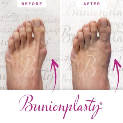 Bunionplasty Before & After Patient 7