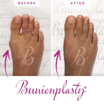 Bunionplasty Before & After Patient 8