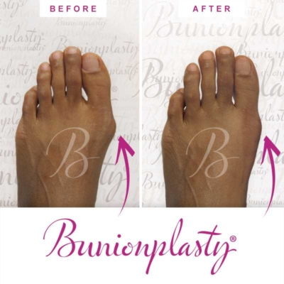 Bunionplasty Before & After Patient 9