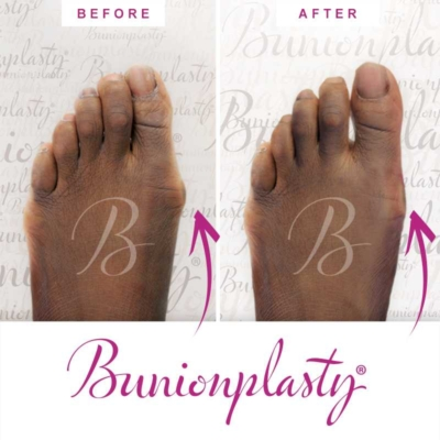 Bunionplasty Before & After Patient 10