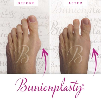 Bunionplasty Before & After Patient 11