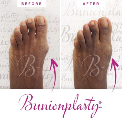 Bunionplasty Before & After Patient 12