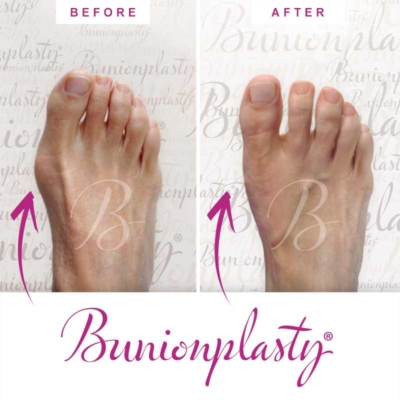 Bunionplasty Before & After Patient 13