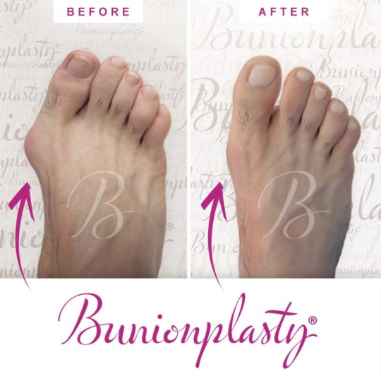 Bunionplasty Before & After Patient 26