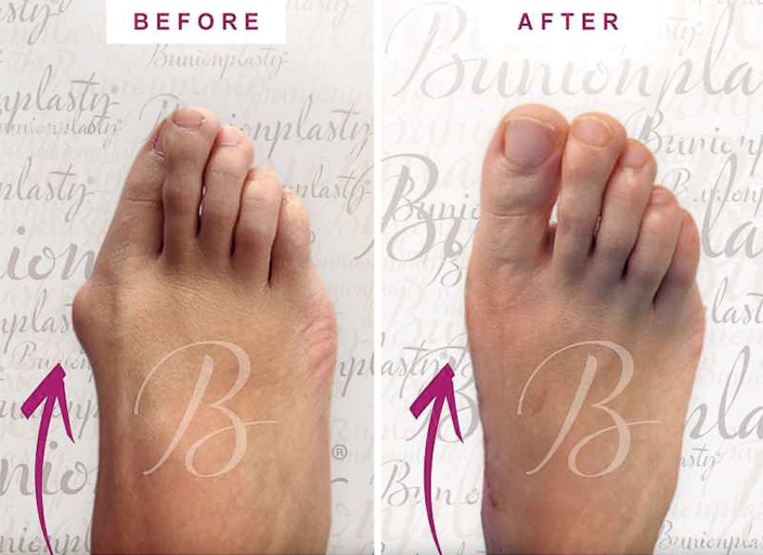 Image of feet before and after severe bunion surgery