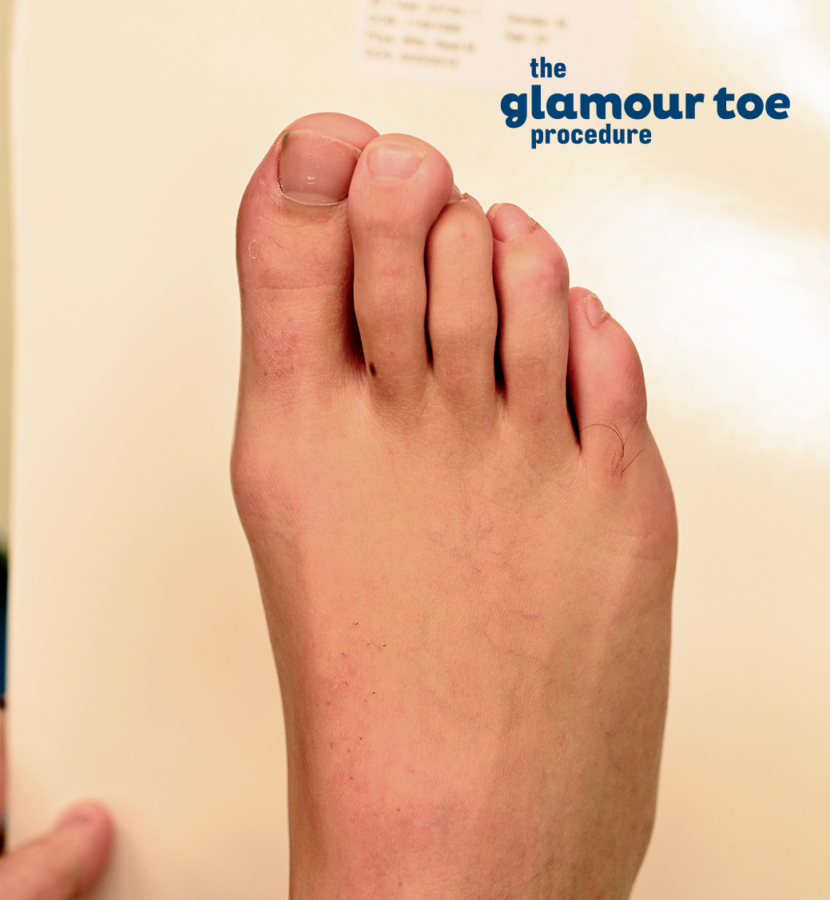 Glamour Toe Procedure