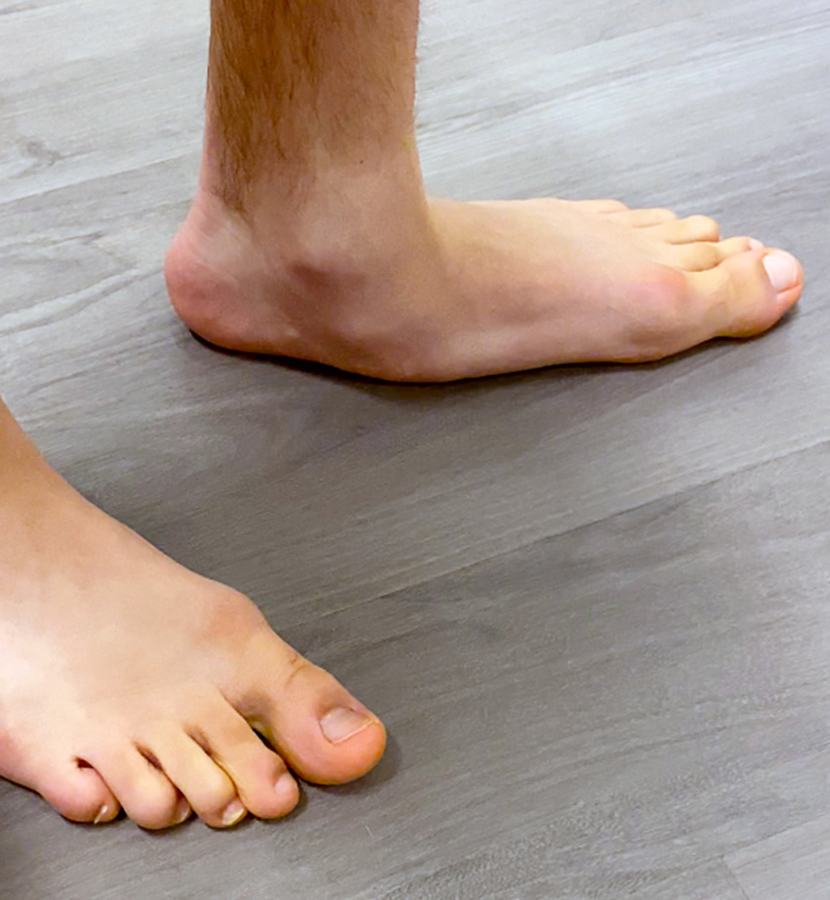 Reconstructive Foot Ankle Surgery