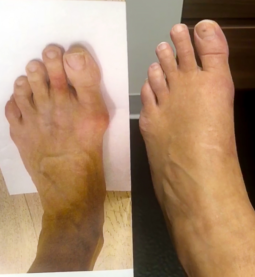 Bunionplasty Before & After