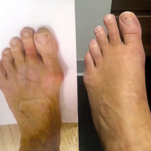 Before and after image of Bunion Surgery