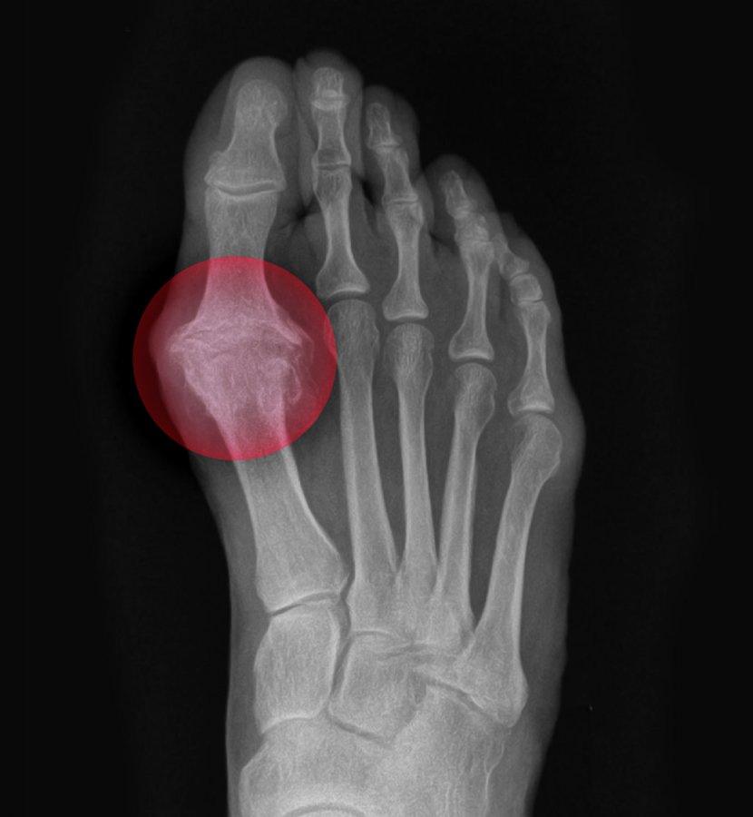X-Ray of Big Toe Arthritis