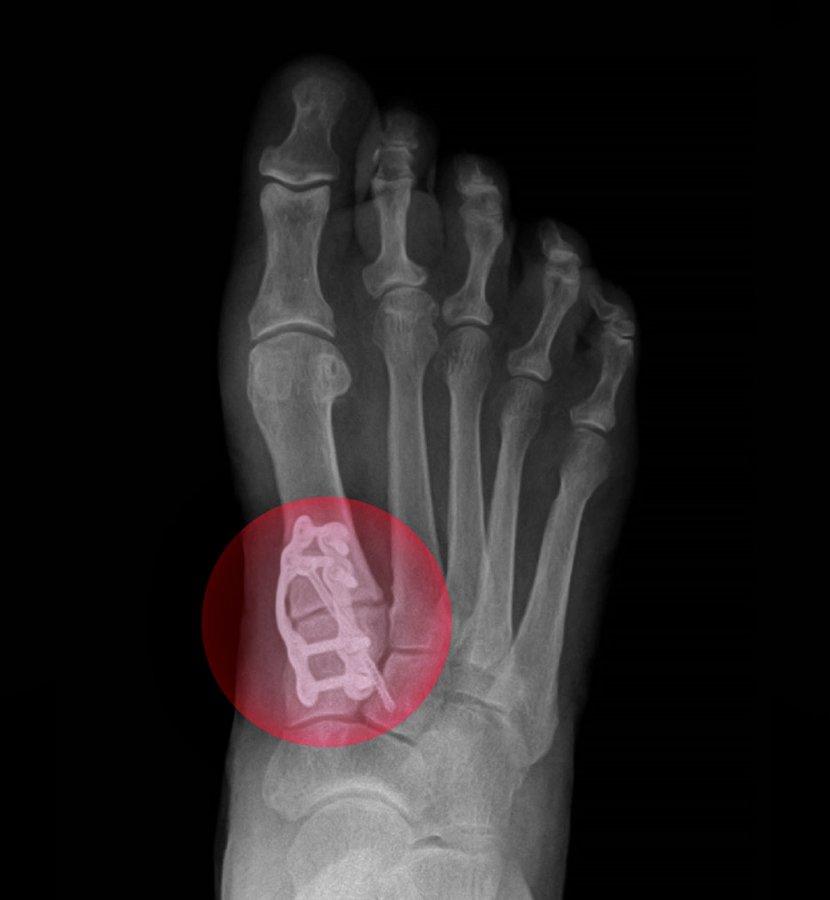 X-Ray of Previous Failed Bunion Surgery