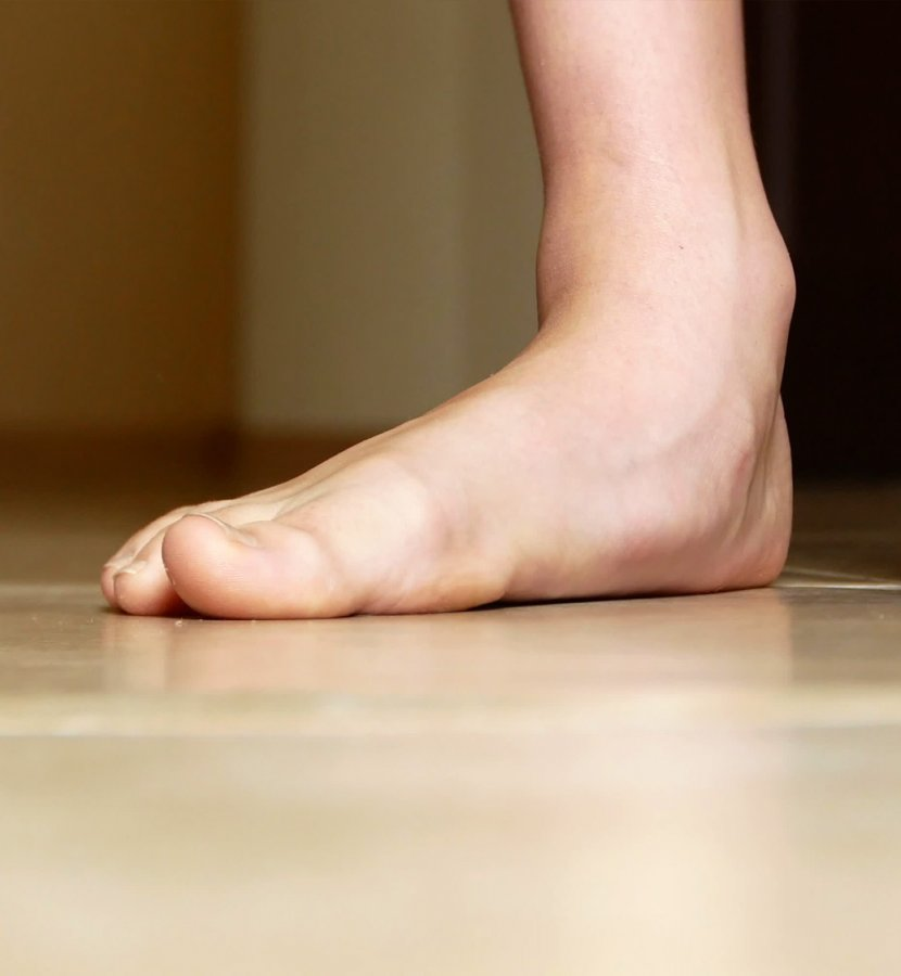 Patient with flat feet
